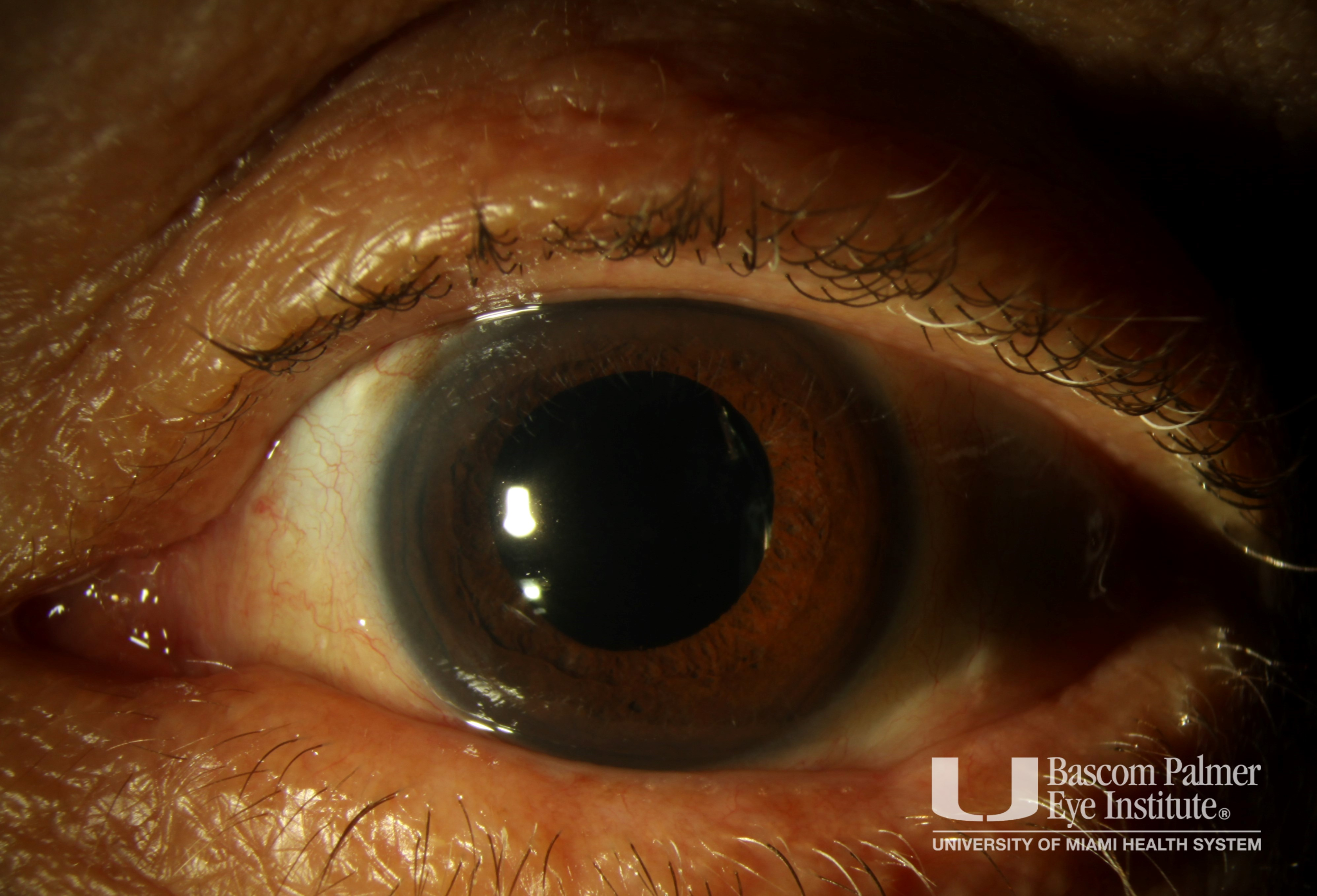 Extruded Scleral Buckle with Scleritis