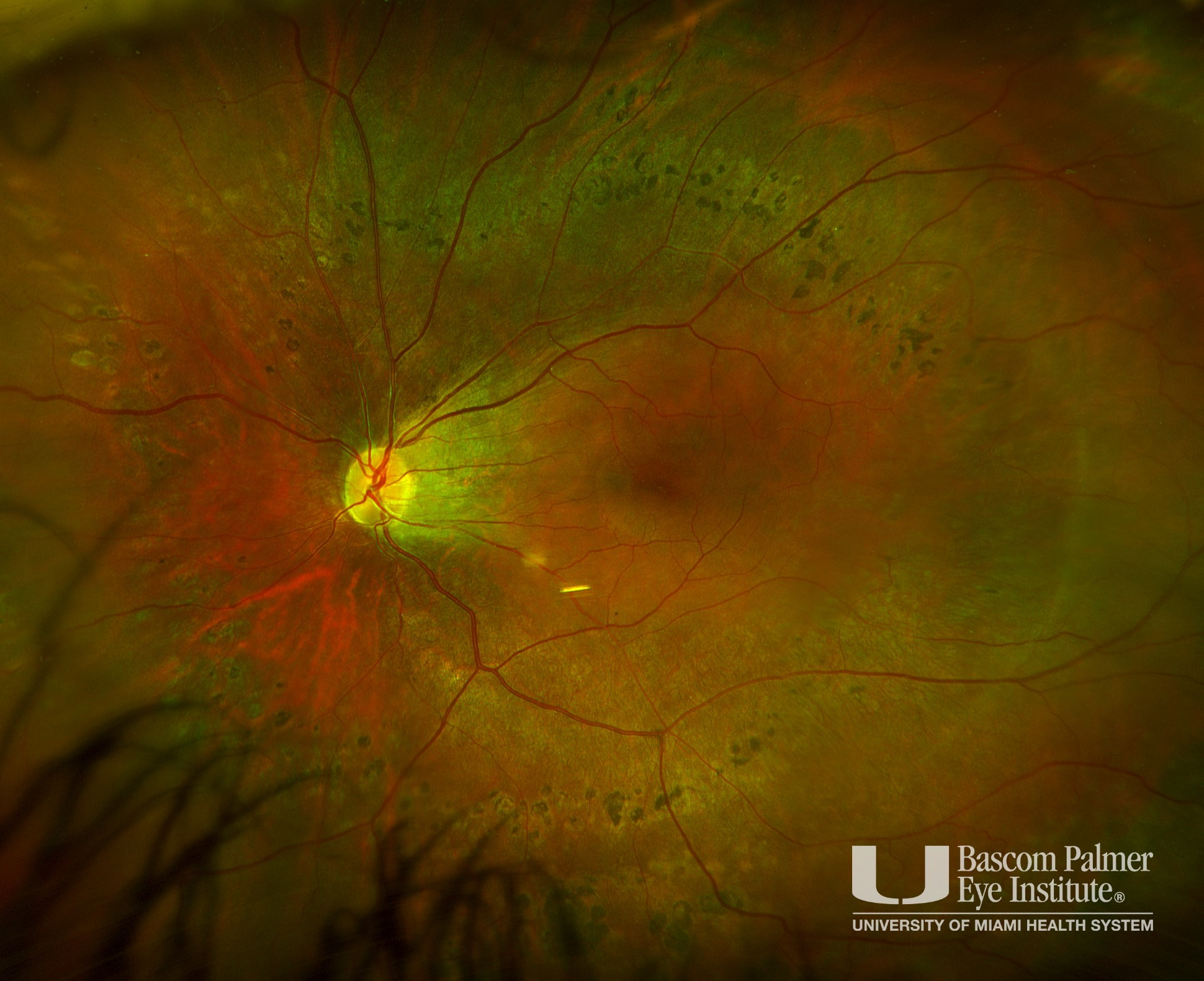 Wegner's Syndrome With Tractional Retinal Detachment