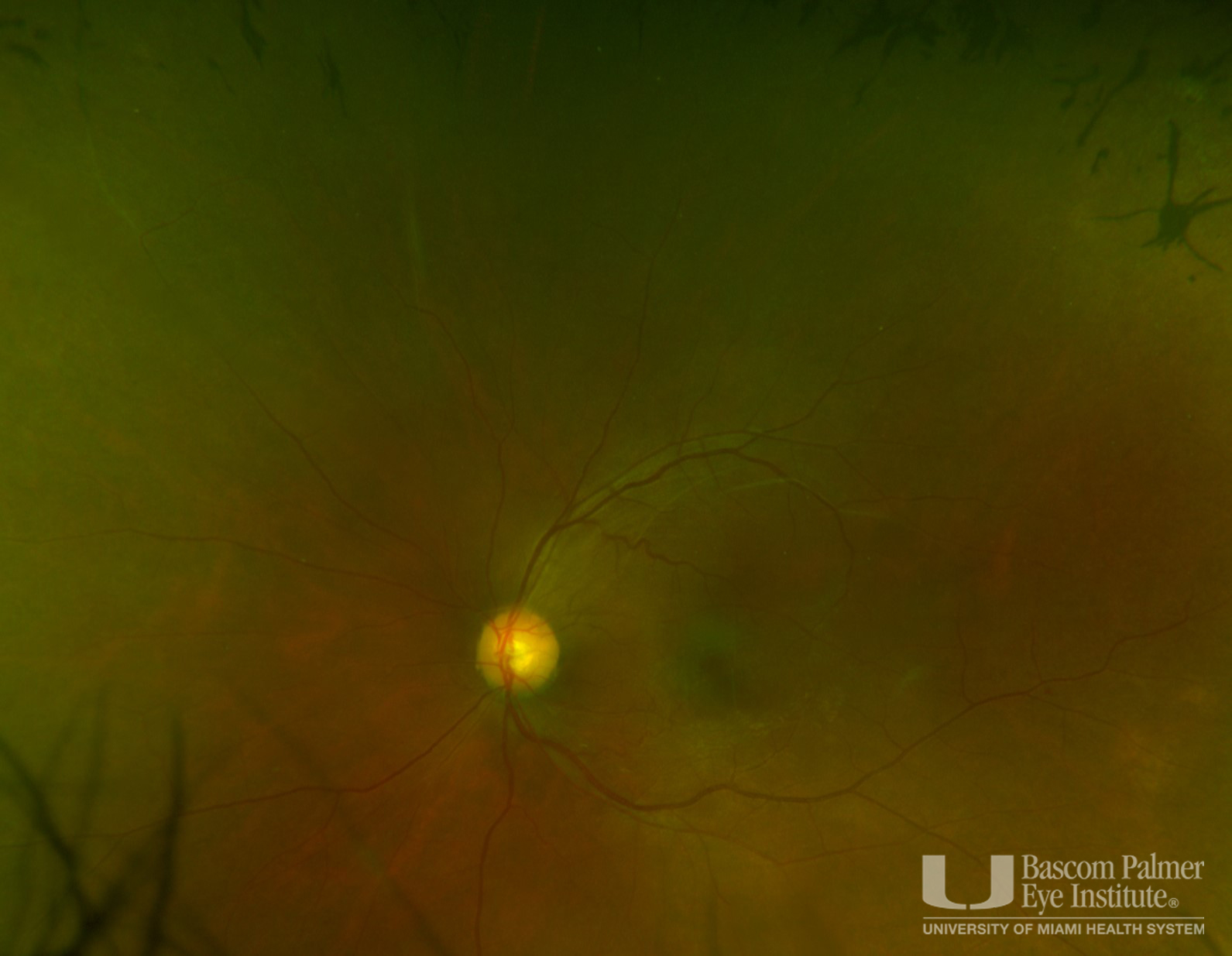 Fundus photo with peripheral hyperpigmentation and bone spicules.