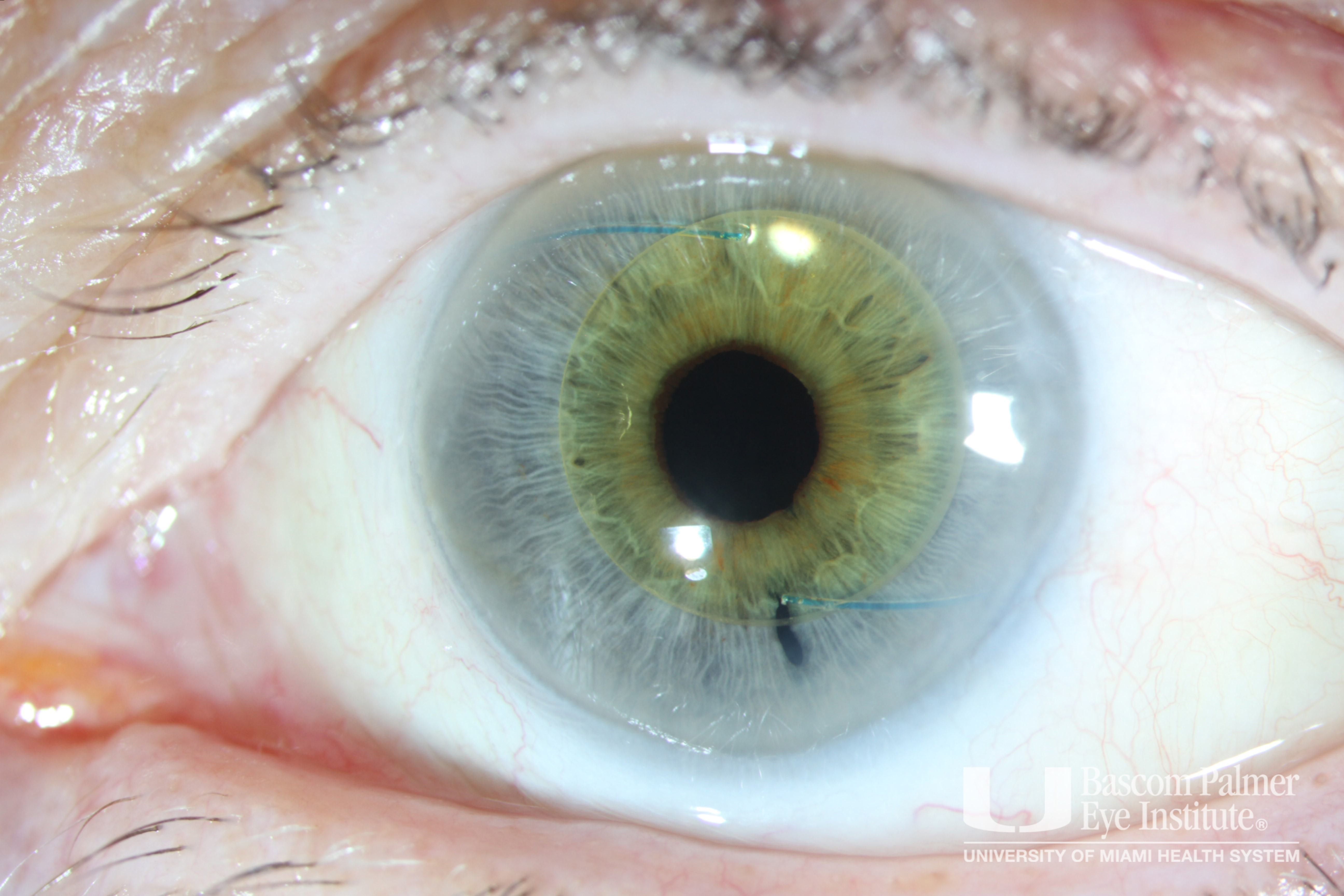 3-Piece Intraocular Lens in the Anterior Chamber