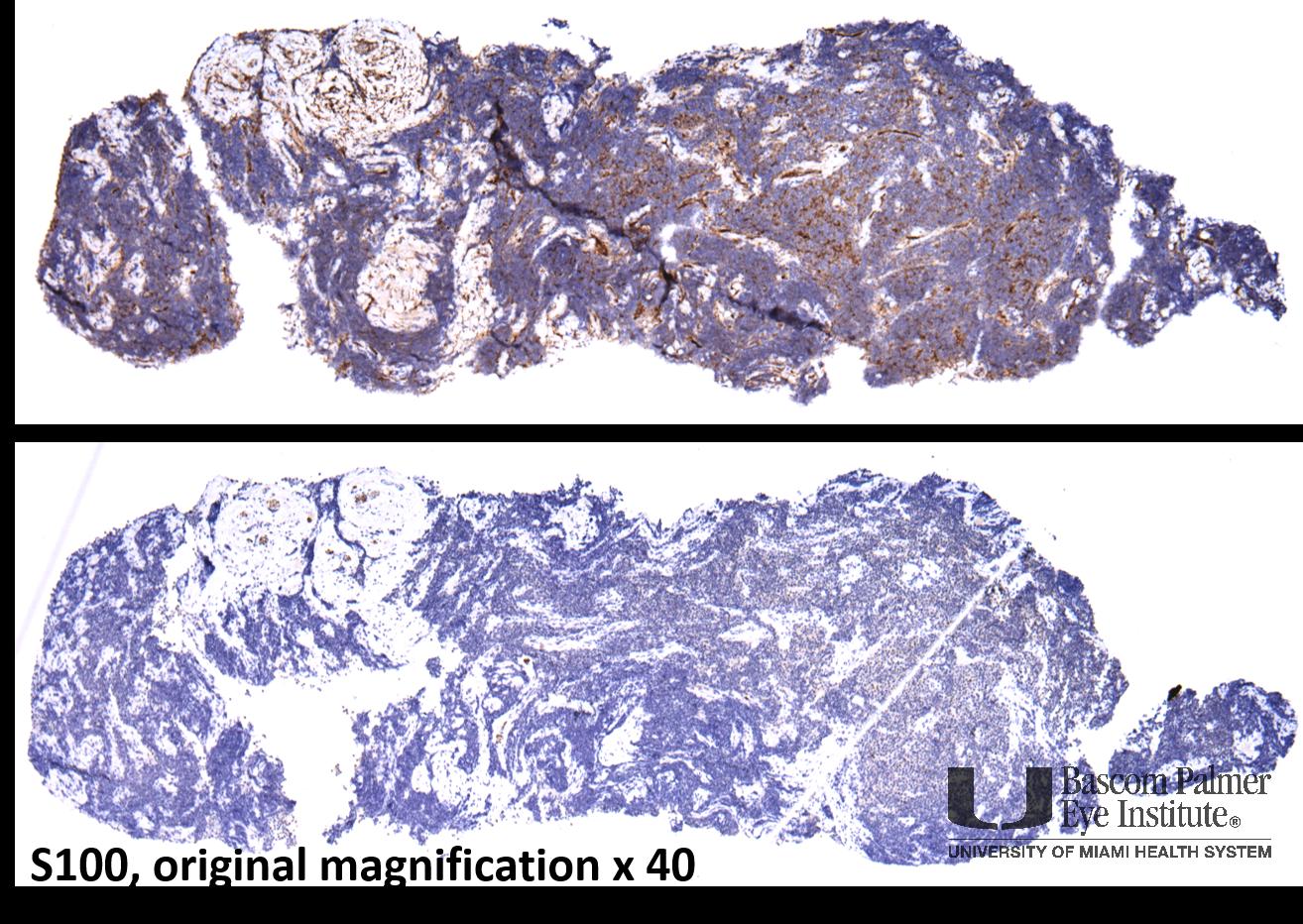 Alveolar Rhabdomyosarcoma